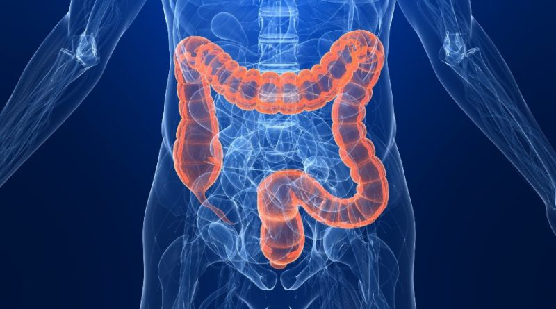 Colon cancer deaths rise among younger adults
